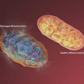 Mitocondrie sanatoasa (dr) vs mitocondrie cu defecte genetice (stg)