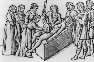 history of cesarean pic