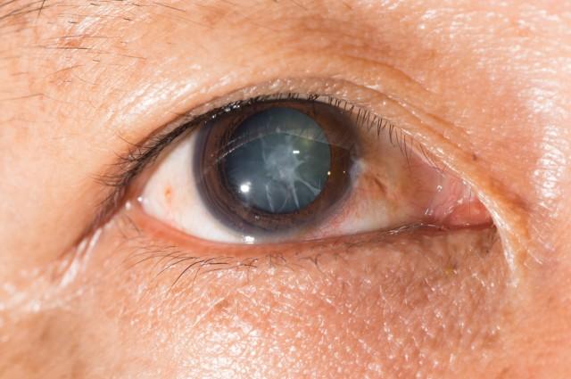 Ochi afectat de cataractă