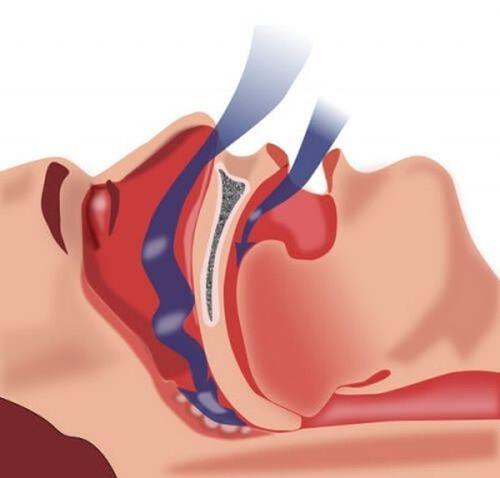 somnul apnea studiu de pierdere în greutate